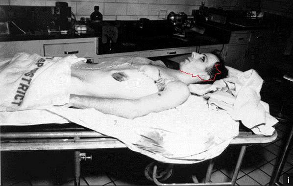 morgue-photo
