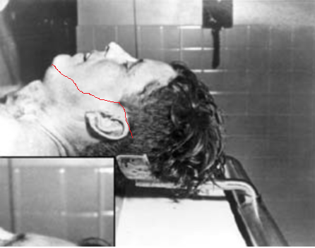 Proof That Morgue Photos Of John F Kennedy Are Fake