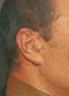 dr-phil-ear-shot