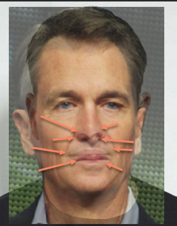 Chris Collinsworth