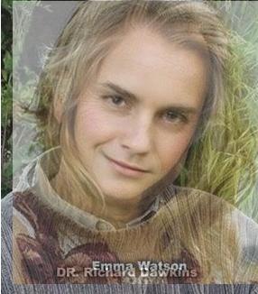 Dawkins Watson