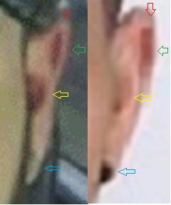 Ear Comparison